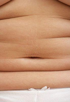 • Karında liposuction yönteminin toparlayamayacağı ölçüde bir sarkma varsa, mini lifting uygulaması yapılıyor. Bu yöntem yapılırken aynı zamanda göbek ve beldeki yağlar da vakumla emilebiliyor. Sarkan, gevşeyen dokunun fazlası alınıyor. Aynı zamanda kasları da daraltılıyor ve böylece bel inceltiliyor.